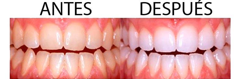 Blanqueamiento Dental Minerva Montcada