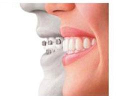 cambia sonrisa doctoraminerva