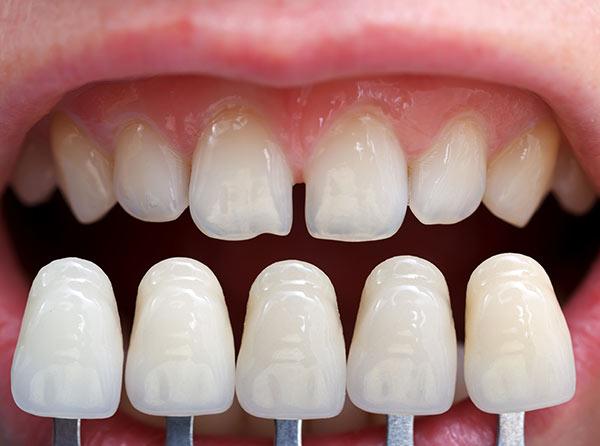 ¿En qué consiste un implante dental?