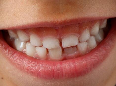Enfermedades dentales infantiles más comunes y cómo detectarlas
