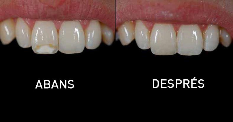estetica dental composite