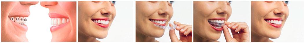 ortodoncia aparatos dentales