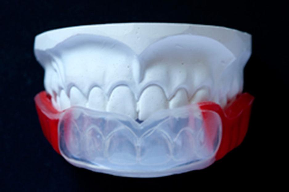 protector dental deportivo