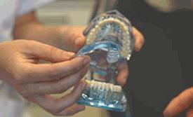 protesis y ferulas dentista montcada